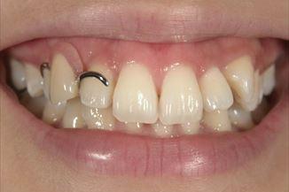 従来の部分入れ歯(上顎)