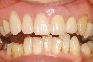金属のバネの入れ歯よりカタつきが少ない バネの見えない入れ歯
