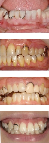 従来の部分入れ歯