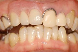 金属のバネの入れ歯よりカタつきが少ない 従来の部分入れ歯