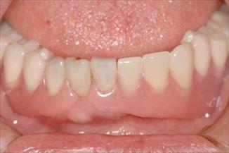 バネの見えない入れ歯(下顎)