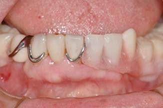 従来の部分入れ歯(下顎)