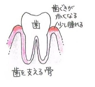 歯茎が赤くなり、少し腫れます。