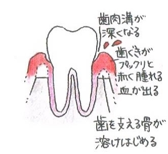 歯肉溝が深くなり、歯茎がプックリ赤く腫れて血が出ます。