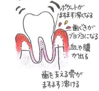 歯茎がブヨブヨになり、血や膿が出ます。硬い物が噛みづらくなります。