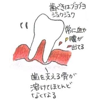 常に血や膿が出ます。痛くて物が噛めません。