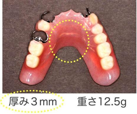 付け心地がいい 従来の部分入れ歯