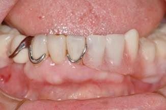 装着例 従来の部分入れ歯